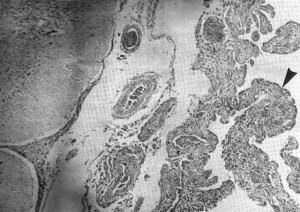 Infected meninges due to septicemia or blood poisoning